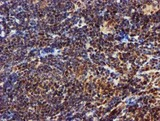IHC of paraffin-embedded Human lymphoma tissue using anti-EPM2AIP1 mouse monoclonal antibody.