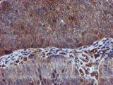 IHC of paraffin-embedded Carcinoma of Human bladder tissue using anti-EPN2 mouse monoclonal antibody.