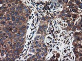 IHC of paraffin-embedded Carcinoma of Human bladder tissue using anti-LMAN1 mouse monoclonal antibody. (Heat-induced epitope retrieval by 10mM citric buffer, pH6.0, 100C for 10min).