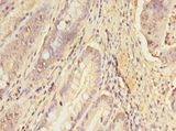 ERGIC1 Antibody - Immunohistochemistry of paraffin-embedded human colon cancer using antibody at 1:100 dilution.  This image was taken for the unconjugated form of this product. Other forms have not been tested.
