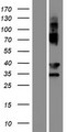 EVPLL Protein - Western validation with an anti-DDK antibody * L: Control HEK293 lysate R: Over-expression lysate