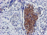 IHC of paraffin-embedded Carcinoma of Human pancreas tissue using anti-EXOSC7 mouse monoclonal antibody. (Heat-induced epitope retrieval by 10mM citric buffer, pH6.0, 100C for 10min).