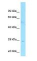 FAM133B Antibody - FAM133B antibody Western Blot of Human Small Intestine.  This image was taken for the unconjugated form of this product. Other forms have not been tested.