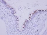 IHC of paraffin-embedded Normal breast tubule, using CGI 62 antibody at 1:250 dilution.
