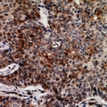 FASTKD3 Antibody - Immunohistochemical analysis of FASTKD3 staining in human breast cancer formalin fixed paraffin embedded tissue section. The section was pre-treated using heat mediated antigen retrieval with sodium citrate buffer (pH 6.0). The section was then incubated with the antibody at room temperature and detected using an HRP conjugated compact polymer system. DAB was used as the chromogen. The section was then counterstained with haematoxylin and mounted with DPX.