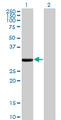 Western Blot analysis of FCN1 expression in transfected 293T cell line by FCN1 monoclonal antibody (M06), clone 2B7.Lane 1: FCN1 transfected lysate(35.1 KDa).Lane 2: Non-transfected lysate.