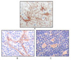 FES Antibody - IHC of paraffin-embedded human cerebrum tumor (A), endothelium of vessel (B), lymphocyte of thymus(C), showing cytoplasmic localization using FES mouse monoclonal antibody with DAB staining.