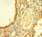 FGD5 Antibody - Immunohistochemistry of paraffin-embedded human lung tissue at dilution of 1:100