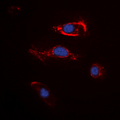 Immunofluorescent analysis of FGF22 staining in K562 cells. Formalin-fixed cells were permeabilized with 0.1% Triton X-100 in TBS for 5-10 minutes and blocked with 3% BSA-PBS for 30 minutes at room temperature. Cells were probed with the primary antibody in 3% BSA-PBS and incubated overnight at 4 ??C in a humidified chamber. Cells were washed with PBST and incubated with a DyLight 594-conjugated secondary antibody (red) in PBS at room temperature in the dark. DAPI was used to stain the cell nuclei (blue).