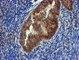 FGFR2 / FGF Receptor 2 Antibody - IHC of paraffin-embedded Adenocarcinoma of Human endometrium tissue using anti-FGFR2 mouse monoclonal antibody.