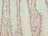 FLAD1 / FADS Antibody - Immunohistochemistry of paraffin-embedded human colon cancer using FLAD1 Antibody at dilution of 1:100