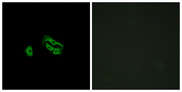 Immunofluorescence analysis of HeLa cells, using FPRL2 Antibody. The picture on the right is blocked with the synthesized peptide.