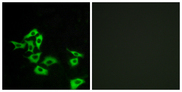 FZD8 / Frizzled 8 Antibody - Immunofluorescence analysis of A549 cells, using FZD8 Antibody. The picture on the right is blocked with the synthesized peptide.
