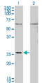 GAP43 Antibody - Western Blot analysis of GAP43 expression in transfected 293T cell line by GAP43 monoclonal antibody (M01), clone 3C11.Lane 1: GAP43 transfected lysate(24.8 KDa).Lane 2: Non-transfected lysate.