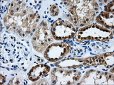 GBE1 Antibody - Immunohistochemical staining of paraffin-embedded Kidney tissue using anti-GBE1 mouse monoclonal antibody. (Dilution 1:50).