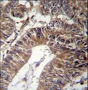 GCC1 / GCC88 Antibody - GCC1 Antibody immunohistochemistry of formalin-fixed and paraffin-embedded human colon carcinoma followed by peroxidase-conjugated secondary antibody and DAB staining.