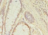 GCC1 / GCC88 Antibody - Immunohistochemistry of paraffin-embedded human colon cancer at dilution 1:100