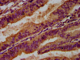 Immunohistochemistry Dilution at 1:500 and staining in paraffin-embedded human endometrial cancer performed on a Leica BondTM system. After dewaxing and hydration, antigen retrieval was mediated by high pressure in a citrate buffer (pH 6.0). Section was blocked with 10% normal Goat serum 30min at RT. Then primary antibody (1% BSA) was incubated at 4°C overnight. The primary is detected by a biotinylated Secondary antibody and visualized using an HRP conjugated SP system.