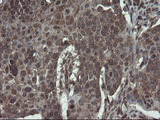 IHC of paraffin-embedded Carcinoma of Human lung tissue using anti-ACBD3 mouse monoclonal antibody.