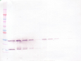 Anti-Human GDNF Western Blot Reduced
