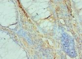GFER Antibody - Immunohistochemistry of paraffin-embedded human colon cancer using antibody at 1:100 dilution.