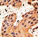 GJA8 / CX50 / Connexin 50 Antibody - Formalin-fixed and paraffin-embedded human cancer tissue reacted with the primary antibody, which was peroxidase-conjugated to the secondary antibody, followed by DAB staining. This data demonstrates the use of this antibody for immunohistochemistry; clinical relevance has not been evaluated. BC = breast carcinoma; HC = hepatocarcinoma.