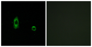 Immunofluorescence analysis of A549 cells, using CXG2 Antibody. The picture on the right is blocked with the synthesized peptide.