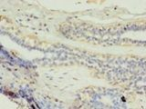 Immunohistochemistry of paraffin-embedded human breast cancer using antibody at 1:100 dilution.  This image was taken for the unconjugated form of this product. Other forms have not been tested.