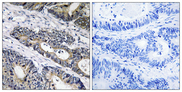 GLB1L3 Antibody - Immunohistochemistry analysis of paraffin-embedded human colon carcinoma, using GLB1L3 Antibody. The picture on the right is blocked with the synthesized peptide.
