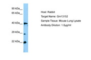 Gm13152 Antibody -  This image was taken for the unconjugated form of this product. Other forms have not been tested.