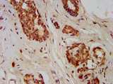 Immunohistochemistry image at a dilution of 1:400 and staining in paraffin-embedded human breast cancer performed on a Leica BondTM system. After dewaxing and hydration, antigen retrieval was mediated by high pressure in a citrate buffer (pH 6.0) . Section was blocked with 10% normal goat serum 30min at RT. Then primary antibody (1% BSA) was incubated at 4 °C overnight. The primary is detected by a biotinylated secondary antibody and visualized using an HRP conjugated SP system.