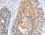 Immunohistochemistry of Human esophagus cancer using GNAT3 Polyclonal Antibody at dilution of 1:35.