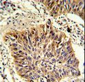 Formalin-fixed and paraffin-embedded human lung carcinoma with GOLPH3 Antibody , which was peroxidase-conjugated to the secondary antibody, followed by DAB staining. This data demonstrates the use of this antibody for immunohistochemistry; clinical relevance has not been evaluated.