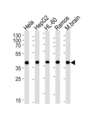 Western blot of lysates from HeLa, HepG2, HL-60, Ramos, mouse brain cell line (from left to right), using GOT2 Antibody. Antibody was diluted at 1:1000 at each lane. A goat anti-rabbit IgG H&L (HRP) at 1:5000 dilution was used as the secondary antibody. Lysates at 35ug per lane.