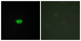 Immunofluorescence of HUVEC cells, using GPR108 Antibody. The picture on the right is treated with the synthesized peptide.