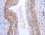Immunohistochemistry of Human cervical cancer using GPR171 Polyclonal Antibody at dilution of 1:25.