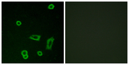Immunofluorescence analysis of LOVO cells, using MTR1L Antibody. The picture on the right is blocked with the synthesized peptide.