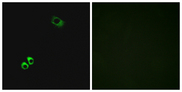 Immunofluorescence analysis of MCF7 cells, using GPRC6A Antibody. The picture on the right is blocked with the synthesized peptide.