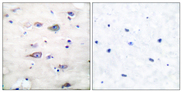 GRIA2 / GLUR2 Antibody - Immunohistochemistry analysis of paraffin-embedded human brain, using GluR2 (Phospho-Ser880) Antibody. The picture on the right is blocked with the phospho peptide.