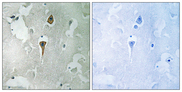GRIN1 / NMDAR1 Antibody - Immunohistochemistry analysis of paraffin-embedded human brain tissue, using NMDAR1 Antibody. The picture on the right is blocked with the synthesized peptide.