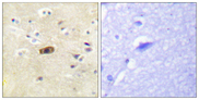 GRIN2A+GRIN2B Antibody - Immunohistochemistry analysis of paraffin-embedded human brain tissue, using NMDAR2A/B Antibody. The picture on the right is blocked with the synthesized peptide.