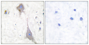Immunohistochemistry analysis of paraffin-embedded human brain tissue, using mGluR7 Antibody. The picture on the right is blocked with the synthesized peptide.