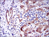 GSTM1 Antibody - IHC of paraffin-embedded liver cancer tissues using GSTM1 mouse monoclonal antibody with DAB staining.