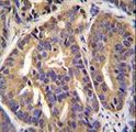 GTF2H2C Antibody - GTF2H2C Antibody immunohistochemistry of formalin-fixed and paraffin-embedded human prostate carcinoma followed by peroxidase-conjugated secondary antibody and DAB staining.