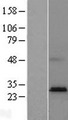 HACD4 / PTPLAD2 Protein - Western validation with an anti-DDK antibody * L: Control HEK293 lysate R: Over-expression lysate