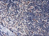 IHC of paraffin-embedded Human lymphoma tissue using anti-HARS2 mouse monoclonal antibody.
