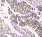 HAS1 / HAS Antibody - IHC staining of FFPE human lung cancer with HAS1 antibody at 1ug/ml. HIER: boil tissue sections in pH6, 10mM citrate buffer, for 10-20 min and allow to cool before testing.