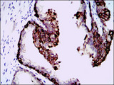 HAS3 Antibody - IHC of paraffin-embedded prostate tissues using HAS3 mouse monoclonal antibody with DAB staining.