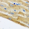 Immunohistochemical analysis of HAX1 staining in mouse heart formalin fixed paraffin embedded tissue section. The section was pre-treated using heat mediated antigen retrieval with sodium citrate buffer (pH 6.0). The section was then incubated with the antibody at room temperature and detected using an HRP conjugated compact polymer system. DAB was used as the chromogen. The section was then counterstained with hematoxylin and mounted with DPX.
