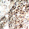 HDAC3 Antibody - Immunohistochemical analysis of Histone Deacetylase 3 (pS424) staining in human breast cancer formalin fixed paraffin embedded tissue section. The section was pre-treated using heat mediated antigen retrieval with sodium citrate buffer (pH 6.0). The section was then incubated with the antibody at room temperature and detected using an HRP conjugated compact polymer system. DAB was used as the chromogen. The section was then counterstained with hematoxylin and mounted with DPX.